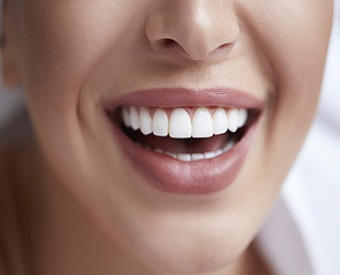 Smile Design and Cosmetic Dentistry