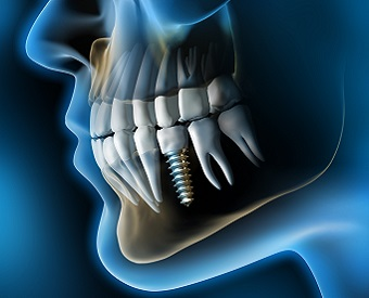 Oral Surgeries and Dental Implants
